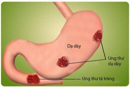 biến chứng của đau dạ dày nặng nhất