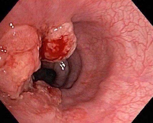 khối u dạ dày ác tính
