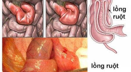 bệnh lồng ruột