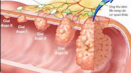 chữa khỏi ung thư dạ dày