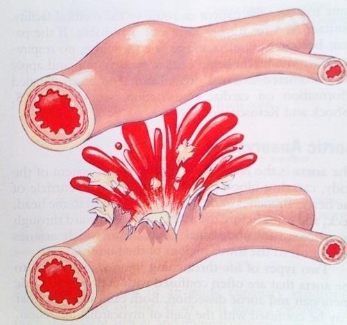 dấu hiệu xuất huyết tiêu hóa
