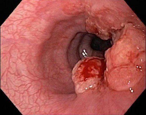 khó nuốt ở cổ họng do ung thư thực quản