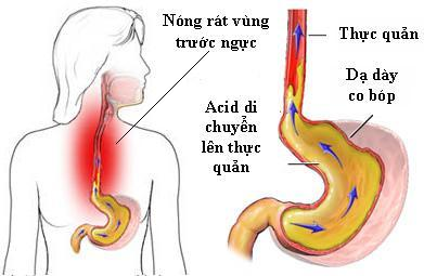 trào ngược dạ dày