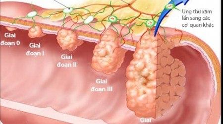ung thư dạ dày giai đoạn cuối