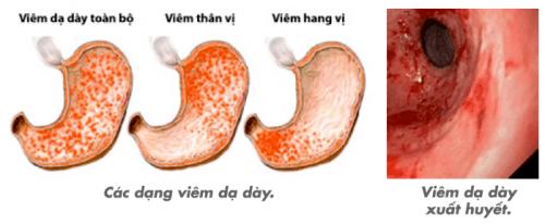 viêm trợt hang vị dạ dày