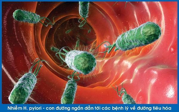 đau dạ dày khó hết vì nhiễm Hp