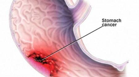 đối tượng dễ mắc ung thư dạ dày