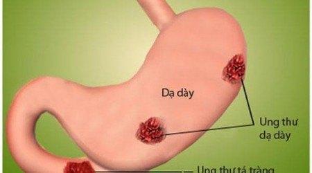 điều trị ung thư dạ dày bằng xạ trị
