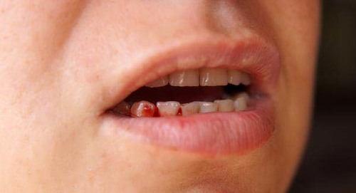 chảy máu chân răng do viêm nướu