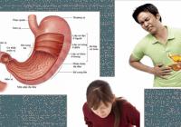 dấu hiệu loét dạ dày tá tràng