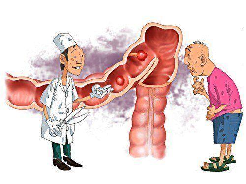 Kết quả hình ảnh cho viêm đại tràng mãn tính