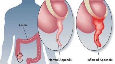dấu hiệu cảnh báo đau ruột thừa