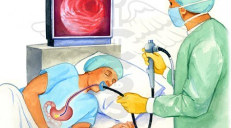 nội soi dạ dày gây mê