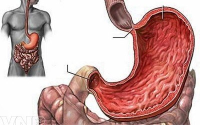 rách chỗ nối thực quản dạ dày