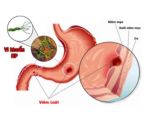 Có nhiều nguyên nhân gây nên bệnh dạ dày