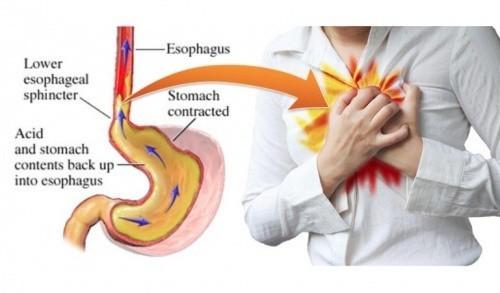 bệnh trào ngược dịch vị dạ dày