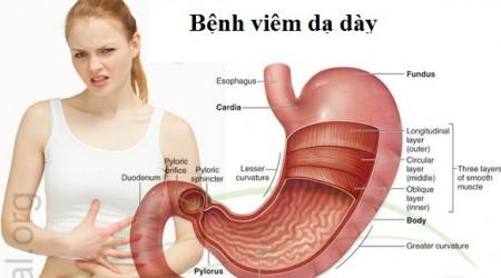 viem-da-day