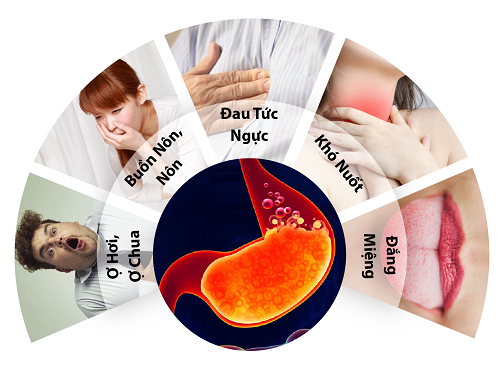 Thuốc giảm tăng tiết acid