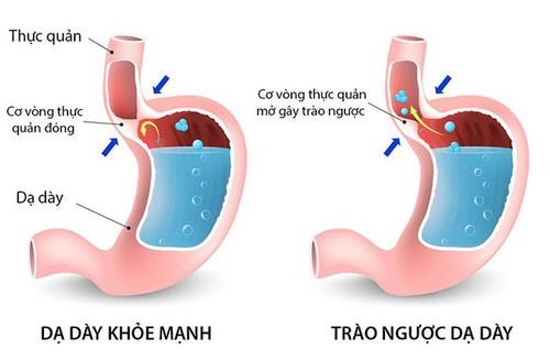 Nguyên nhân gây trào ngược dạ dày