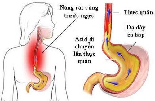bị trào ngược dạ dày có được ăn chuối không
